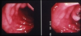 jejunal polyp/polypectomy