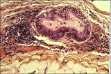 Colite infectieuse