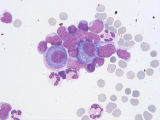 Cellules mésothéliales; Lymphocytes; Polynucléaires neutrophiles;