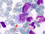 Promonocyte;